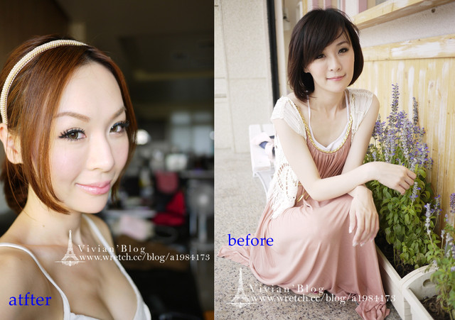 V妞隆乳before-after